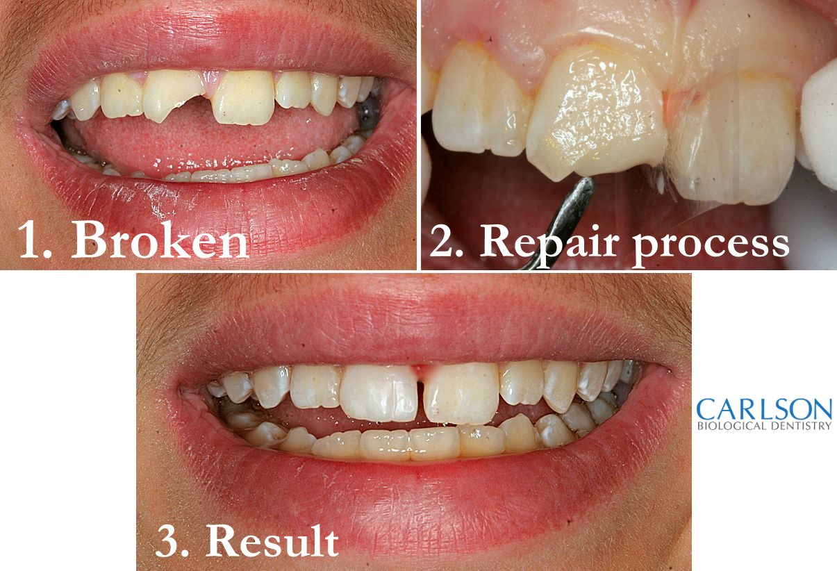 Can you repair a crack in a tooth